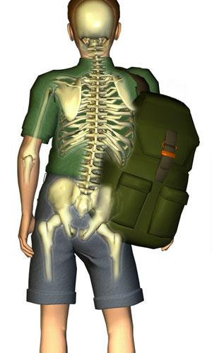 obremenitev-hrbtenice-pri-nošenju-šolske-torbe