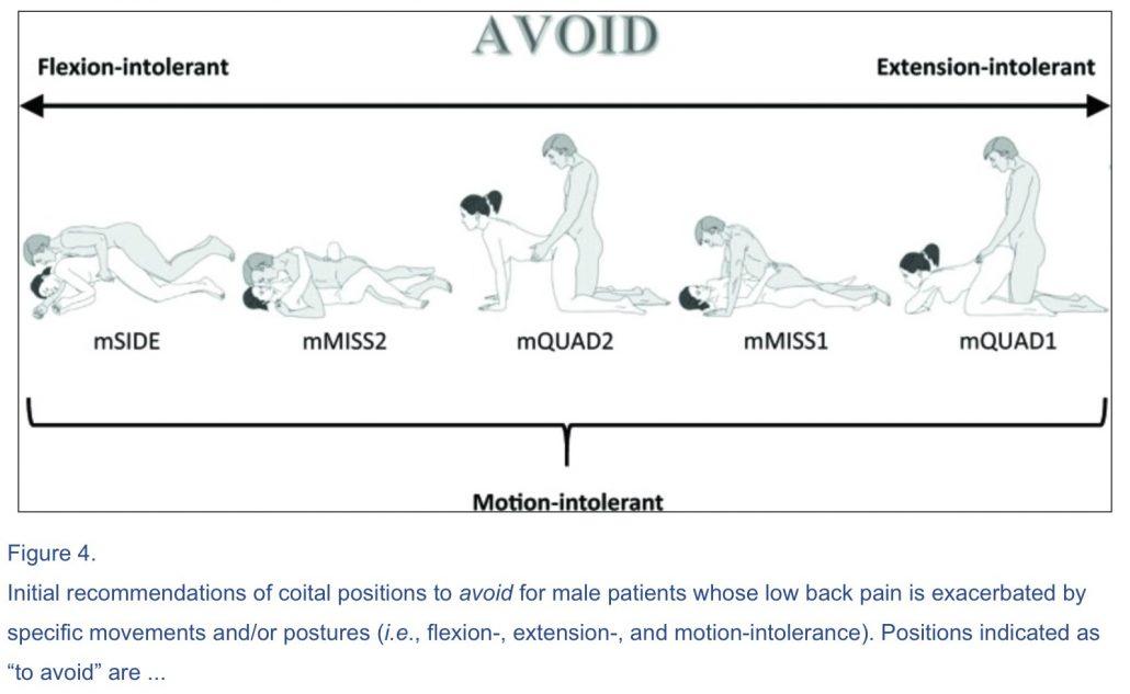 Predlagani spolni položaji pri bolečinah v hrbtu.